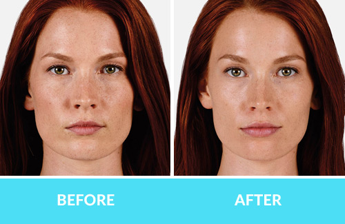 Juvederm before after comox